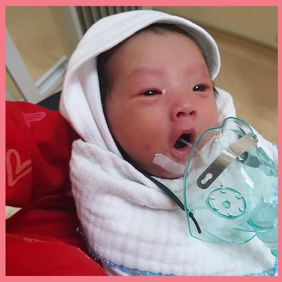 Bé sơ sinh bị nhiễm Virus Hợp bào đường hô hấp vì nụ hôn từ người lạ