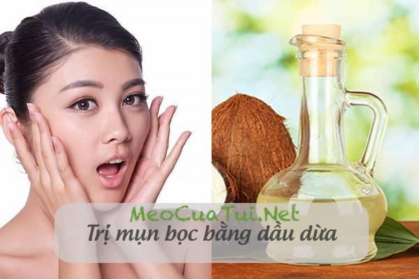 trị mụn với dầu dừa
