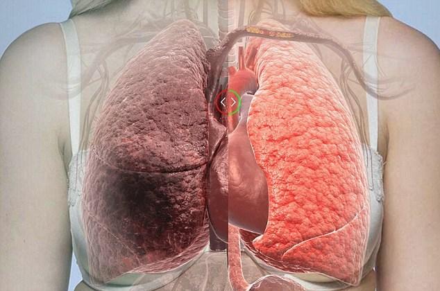 thực phẩm giúp thanh lọc phổi hình 1