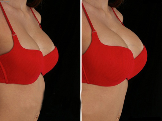 nở ngực hình 1