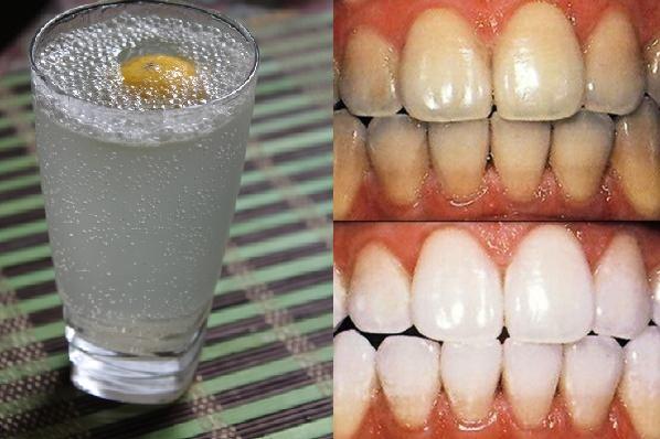 làm trắng răng với soda hình 1