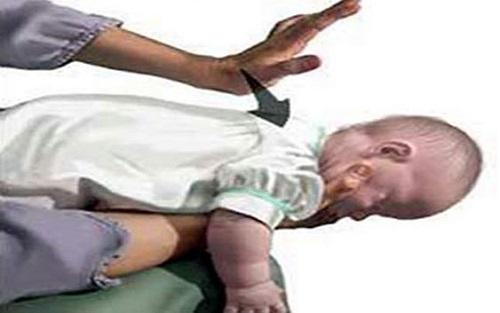 sơ cứu trẻ bị hóc dị vật hình 1