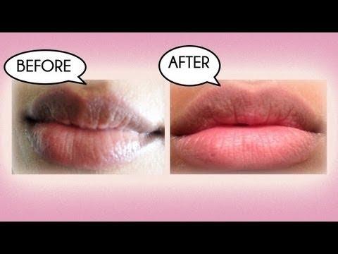Trị môi thâm hinh 5