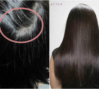 trị rụng tóc hình 2