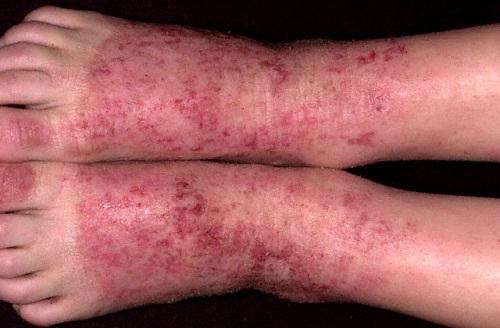 viêm da ở trẻ hình 5
